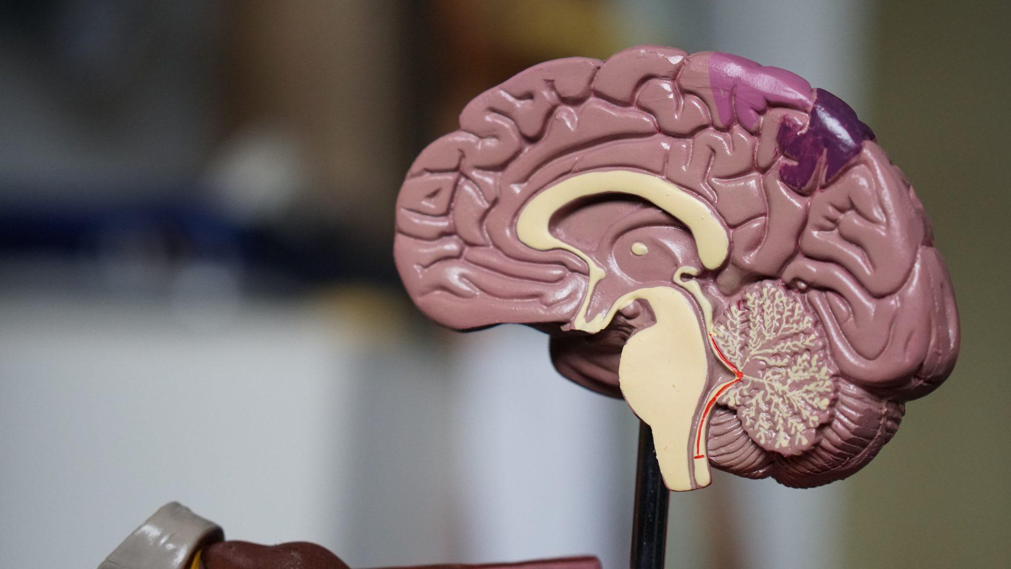 Alzheimer's & Brain Awareness Month